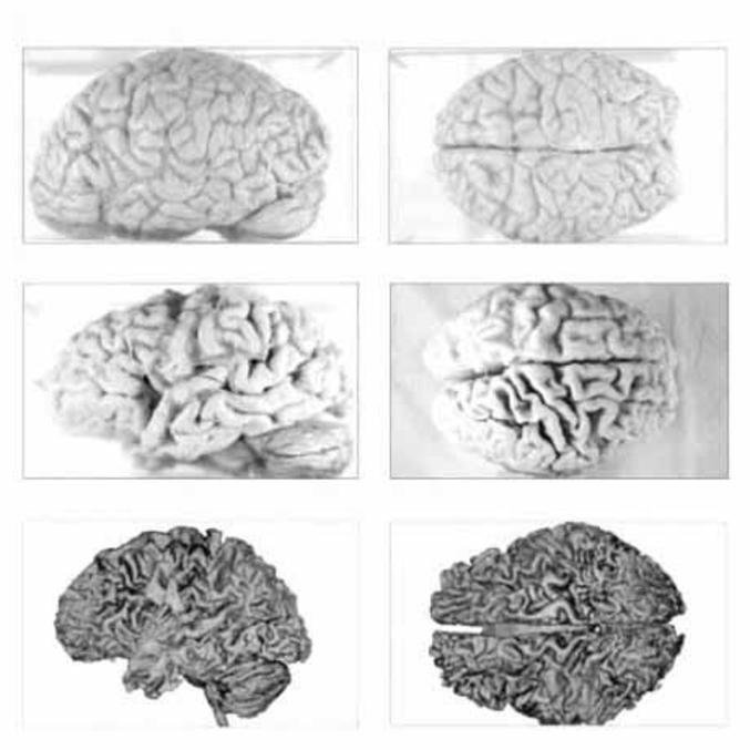 En haut, cerveau de Lombrik. Au milieu, cerveau de Régis. En bas, cerveau de Triskel.
