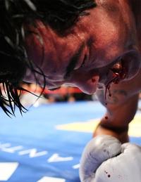 Boxeur salement touché à la lèvre