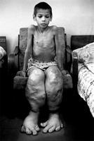 Désolant : la catastrophe de Tchernobyl entraîna des malformations terribles