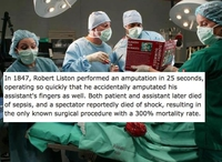 Robert Liston, ce chirurgien de l'extrême