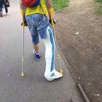 Quand un russe a la jambe cassée