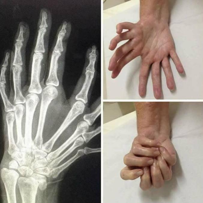 Au moins cette main peut tenir de gros objets :D