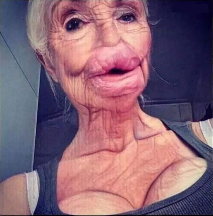 Comment seront nos grands-mères dans qq années si on continue d'abuser de la chirurgie soit-disant esthétique...