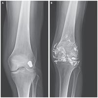 Empoisonnement au plomb à cause d'une balle dans le genou