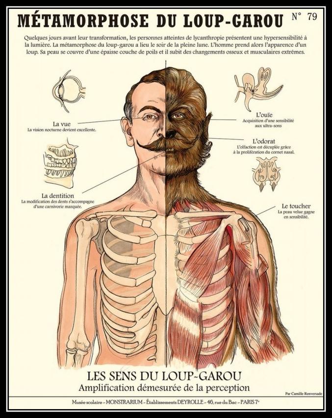 Planche médicale sur la métamorphose.