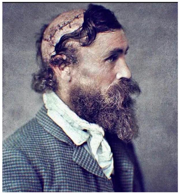 Une éponge suffira, merci.   Un fermier qui a survécu à deux flèches dans le dos et dont 413 cm² de peau ont été scalpés par le chef Sioux Little Turtle en 1864.  Photographie de Robert McGee.