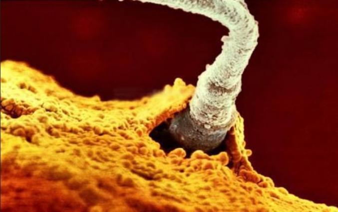 Un des +/- 200 millions de spermatozoïdes rentre dans l'ovule.  Crédit photo : Lennart Nilsson - 1965 (Thématique, science ou souvenir...j'ai hésité!)