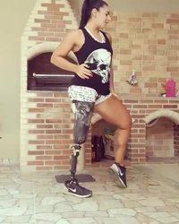 Moi aussi je veux une prothèse maintenant