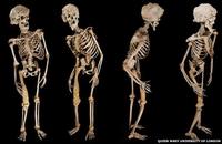 Le squelette d'Eléphant Man