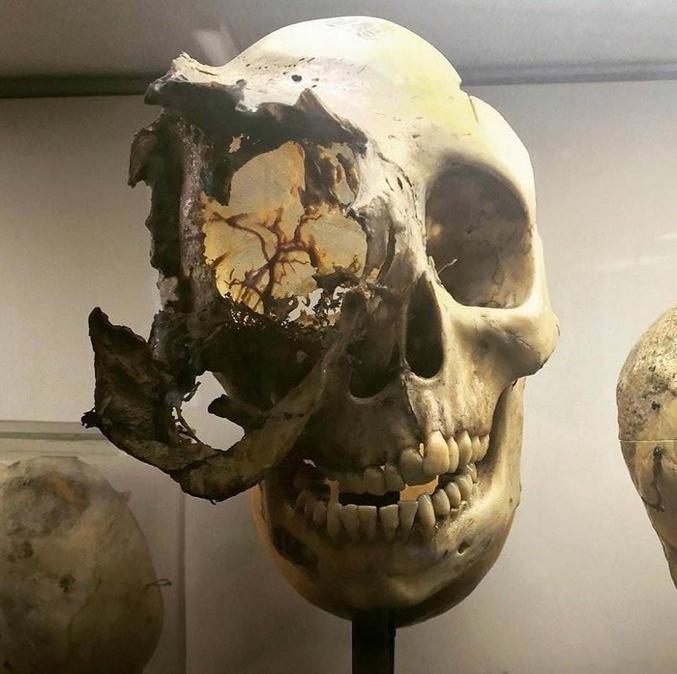 Un chordome est une tumeur rare qui se développe dans les os du crâne et de la colonne vertébrale.