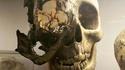 Crâne d'un homme atteint de chordome