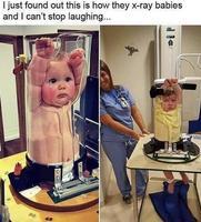 Radiographie pour bébé