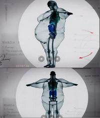 Modélisation en 3D du squellete d'un homme de 450 kg (faite à partie de radios)
