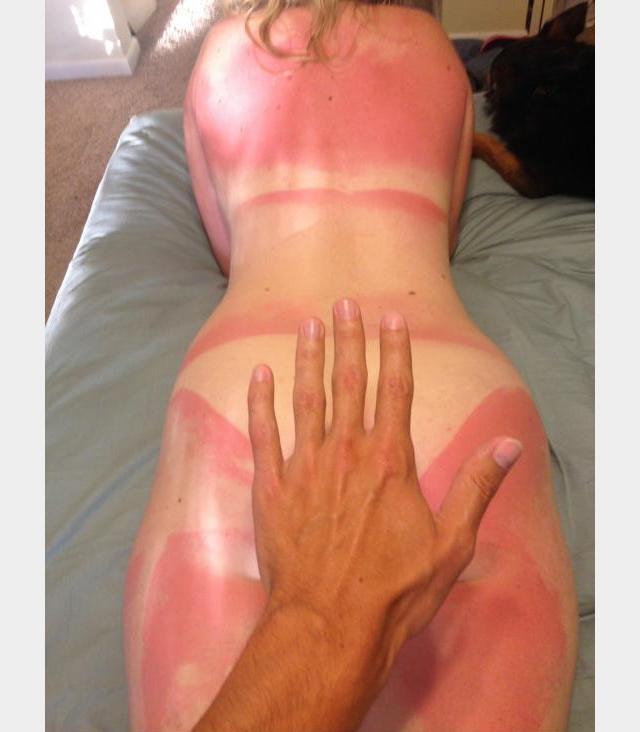 J 39 ai attrap un coup de soleil - Comment ne pas attraper de coup de soleil ...