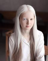 Hétérochromie et albinisme.