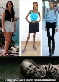 Zombie et anorexique