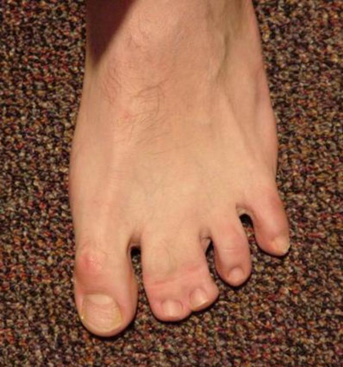 doigt pied
