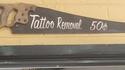 Retrait de tatouage